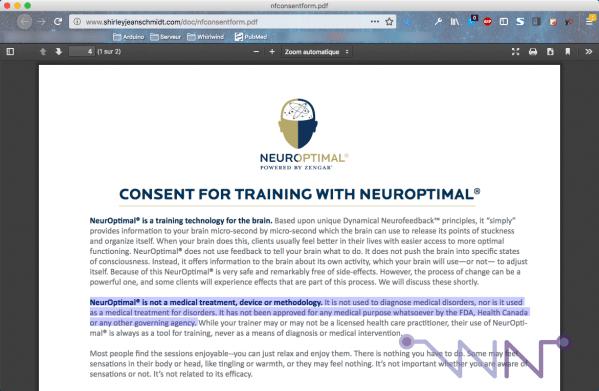 Consentement à l'utilisation de NeurOptimal